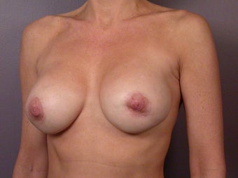 Breast Revision after 307241