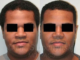 African American Rhinoplasty before 374018