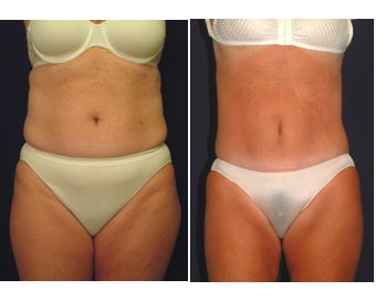 Tummy Tuck / Abdominoplasty before 55012