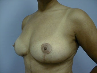 Breast Implant Removal and Lift 589932