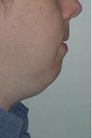 Chin augmentation, neck liposuction, and neck muscle tightening before 277313