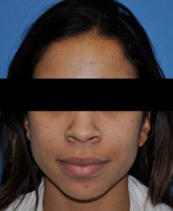 African American Rhinoplasty before 364917