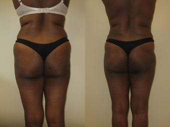 Gluteal augmentation after 220822