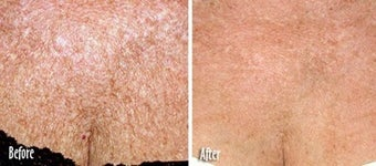 IPL for Age Spots and Uneven Skin Tone on Chest before 6385