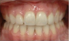 Invisalign Treatment after 359168