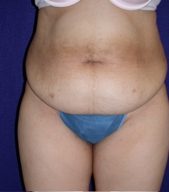 abdominoplasty before 208462