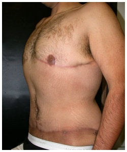 Body Lift and Male Breast Reduction after 334375