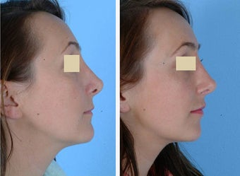 Revision Rhinoplasty before 114212