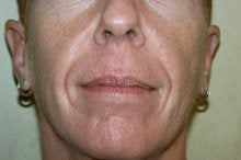 Radiesse and Juvederm XC before 281819