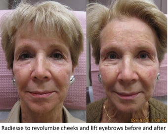 Radiesse facial rejuvenation - Revolumization of Cheeks and Eyebrow Lift before 390172