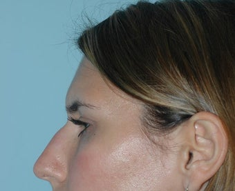 Rhinoplasty before 118337