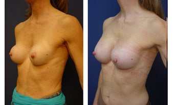 Breast implant correction after 399965