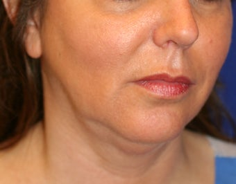 Neck Liposuction before 531701