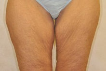 Medial (Inner) Thigh Lift before 341015