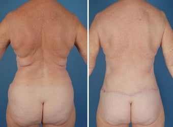 Flank Excision, Abdominoplasty Scar Revision, Liposuction of the Back after 303691