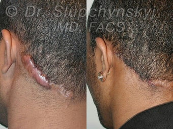 Keloid Removal before 548937