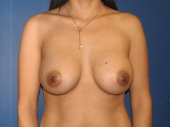 Breast Augmentation after 575286