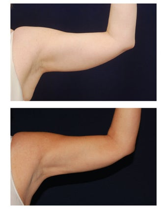 Liposuction before 397168