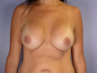 Breast Revision Surgery  after 307254