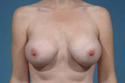 Breast Augmentation after 137678