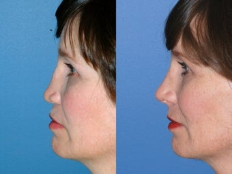 Revision rhinoplasty after 334236