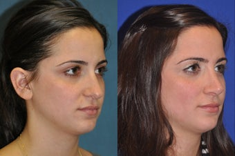 Rhinoplasty before 256041
