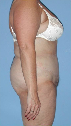 Lipoabdominoplasty after 534000