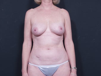 50 Year Old for Breast Reconstruction before 643249