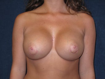 Breast Augmentation  after 574774