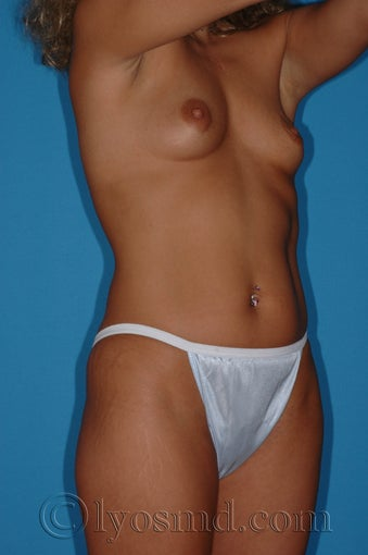 Tumescent Liposuction and Breast Augmentation before 231294