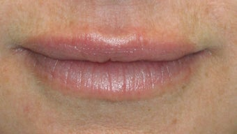 Lip Augmentation after 260740