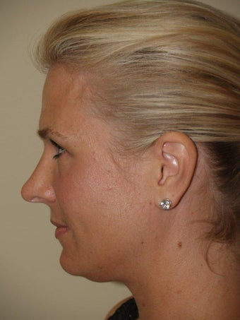 Rhinoplasty  before 250350