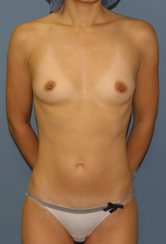 Breast augmentation before 538538