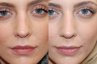 Non-Surgical Rhinoplasty to lower nostrils before 161992
