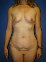 Tummy Tuck (Abdominoplasty),Breast Augmentation, Mommy Makeover, Liposuction before 404209