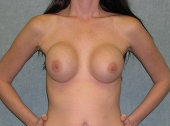 Breast Implant Revision before 435150