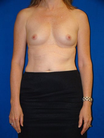 Breast Augmentation before 76684