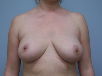 Breast Implant Removal after 589951