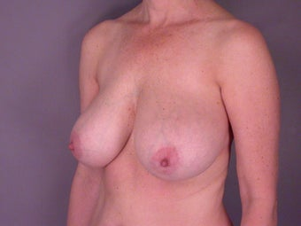 Breast Reduction  before 306344