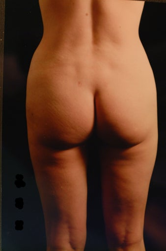 Liposuction after 457072