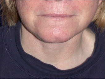 Necklift after 208458