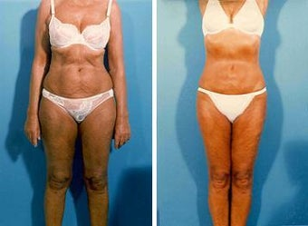 Liposuction before 636227