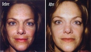 Microderm full face Before and After before 6395