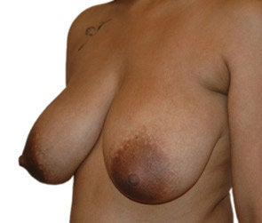 Breast Reduction / Breast Lift 550299