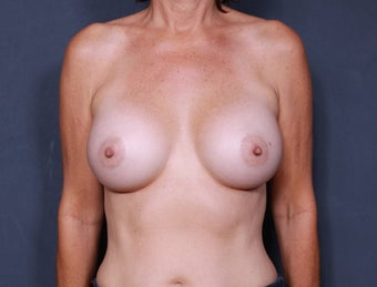 Breast Augmentation after 398401