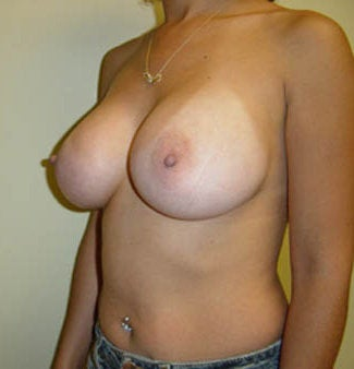 Breast augmentation after 143446
