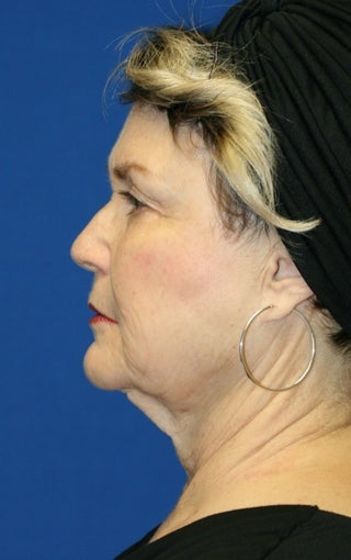 1 month post op: Facelift, Necklift, Browlift, Fat Transfer, Upper Bleph 456304