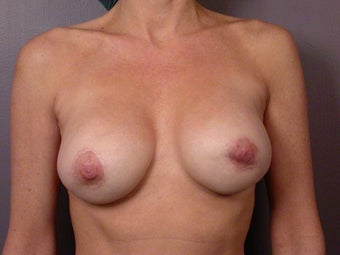 Breast Revision after 307240