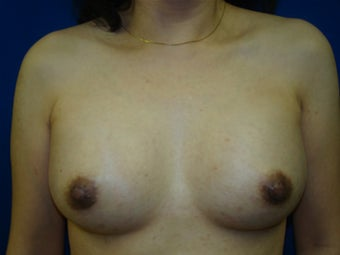 Nipple Reduction and Breast Augmentation after 157932