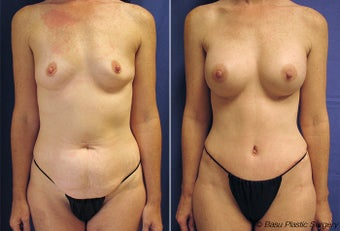 Mommy makeover (tummy tuck and breast augmentation) before 146926